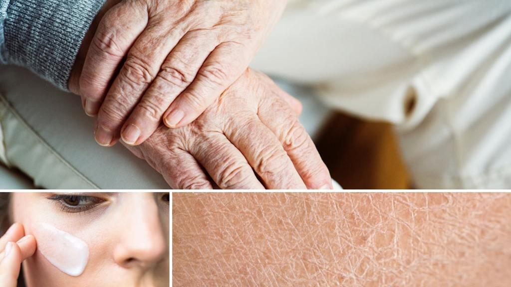 Qué hacer para cuidar mi piel seca
