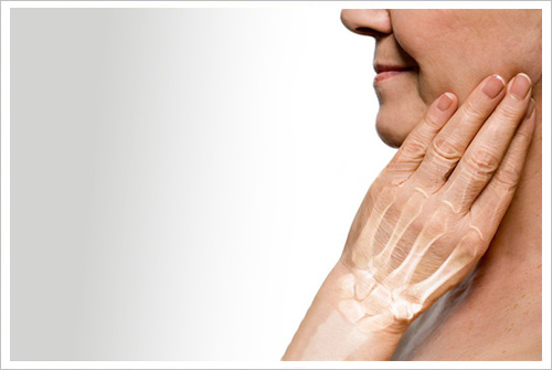mujer con osteoporosis en manos