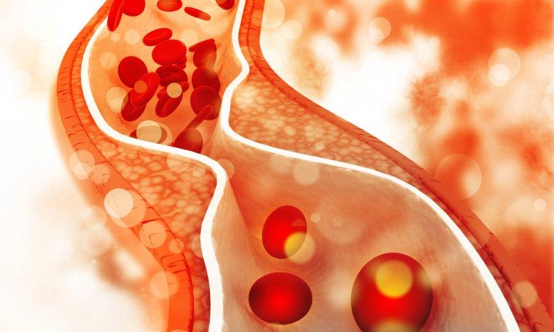 representación del colesterol alto