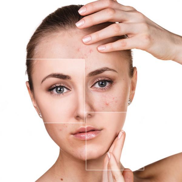 que es el acné hormonal